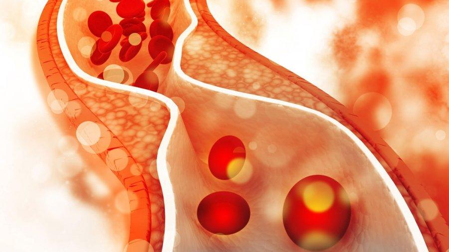 Высокий холестерин в крови