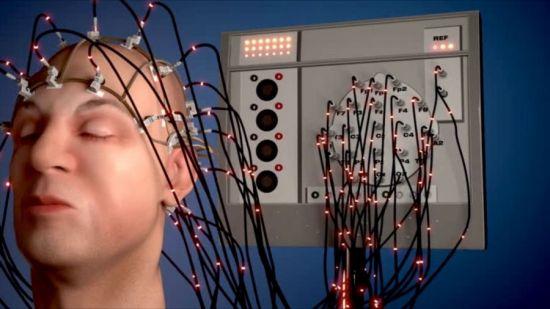 Электроэнцефалограмма