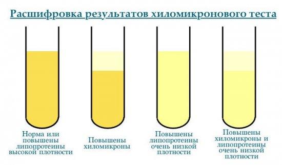 Анализ крови на хиломикроны
