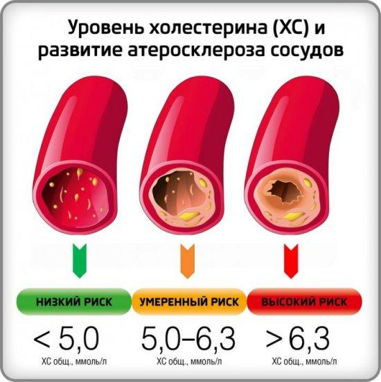 Холестерин и атеросклероз
