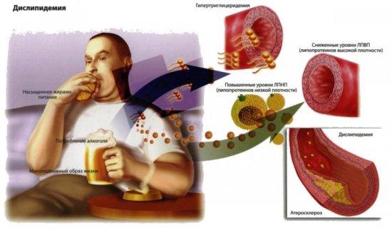 Гиперхолестеринемия у мужчин