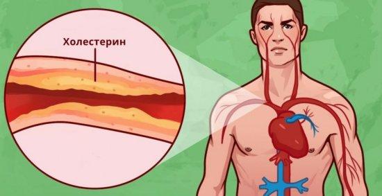 Повышение холестерина