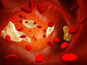 Гиперхолестеринемия